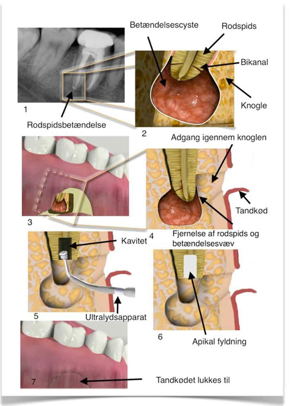 smerter efter rodbehandling