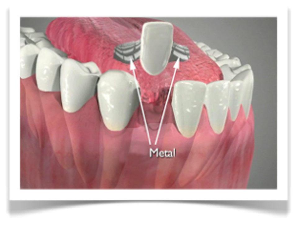 dårlige tænder før og efter
