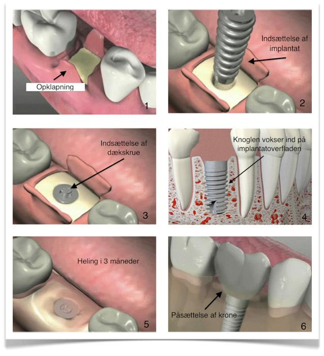 tand vokser skævt ud