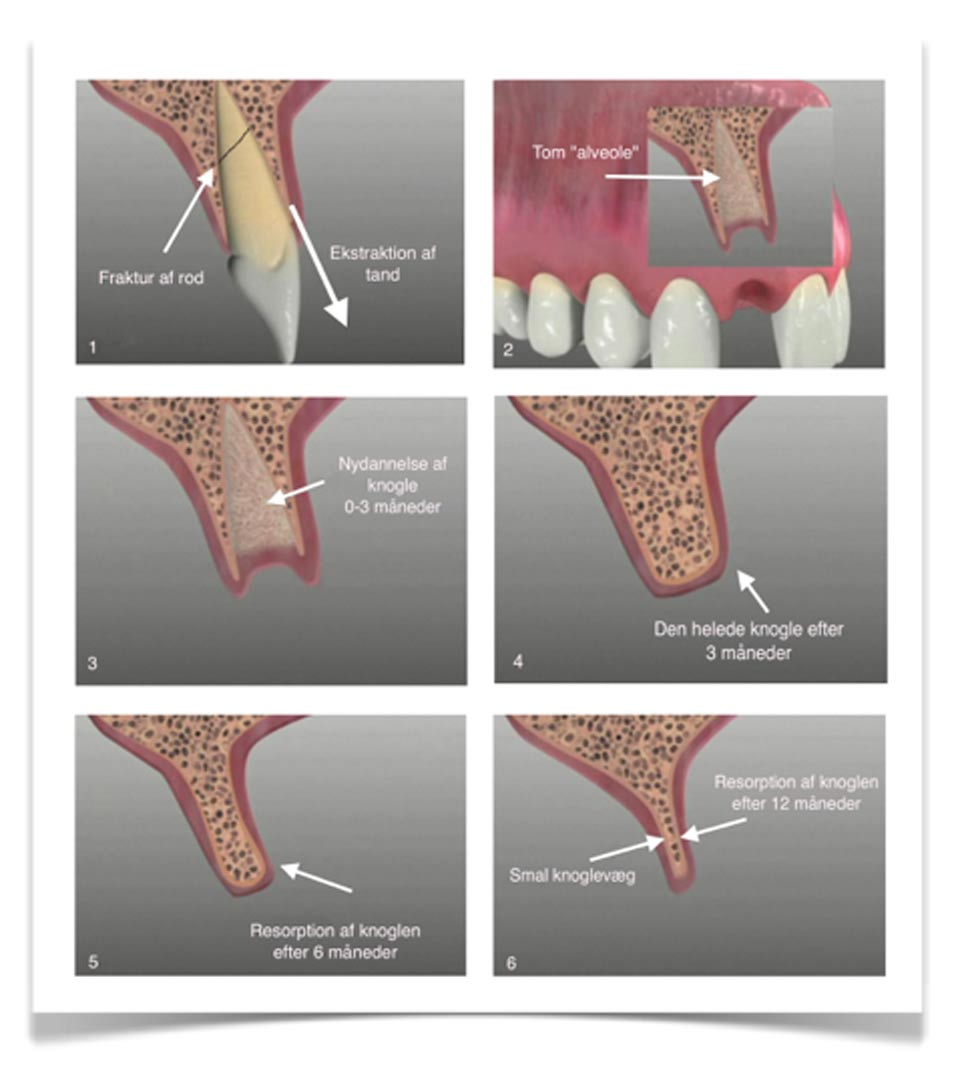 opereret tand ud