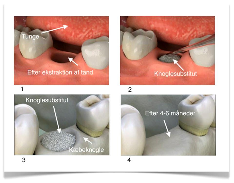 udtrækning af tand