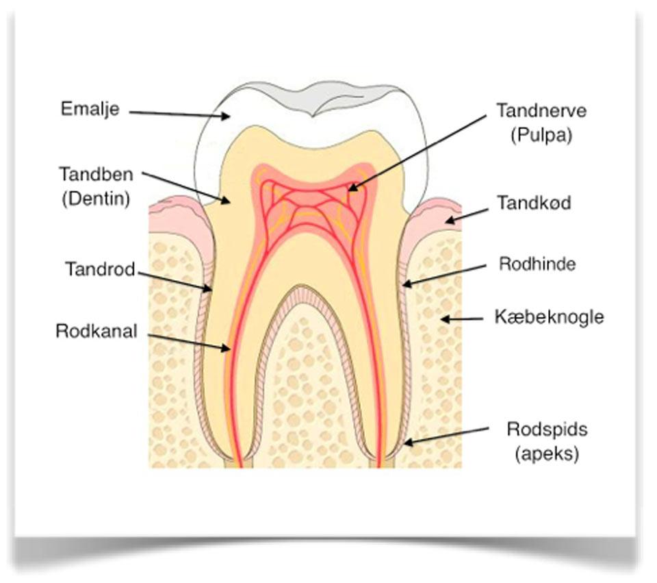betændelse i tænder