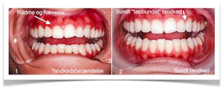 tandkødsbetændelse rodbehandlet tand